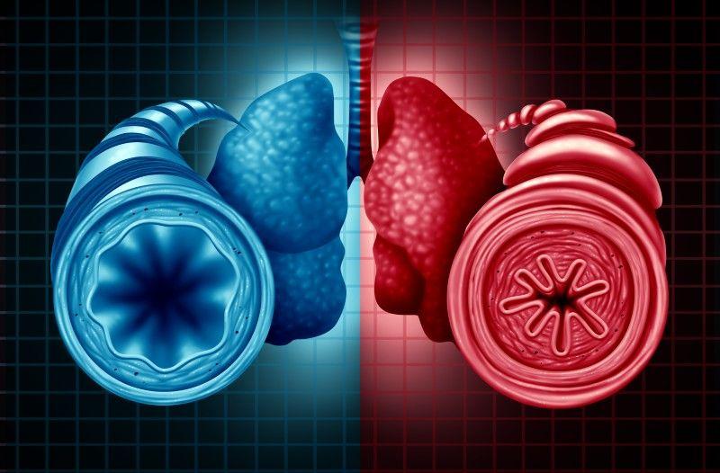 Come curare l'asma