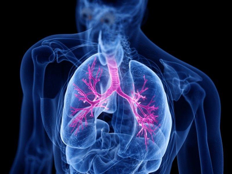 Come curare la bronchite
