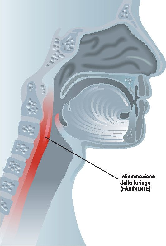 Come curare la faringite