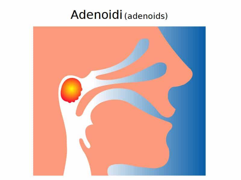 Come curare le adenoidi